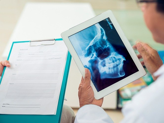 X-ray of jaw and skull on tablet computer