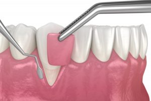 Illustration of gum graft after gum disease therapy