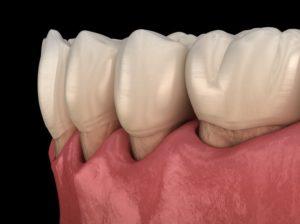 Illustration of gum recession, a symptom of gum disease